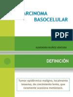 Carcinoma Basocelular - Almendra