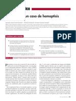 Hemoptisis_actitud Ante La Presentación de Un Caso