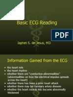 Basic Ekg Lecture