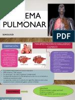 ENFISEMA PULMONAR SEMIOLOGIA.pptx
