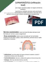 Inyección Supraperióstica (Infiltración Local)