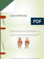 Presentación Gonartrosis