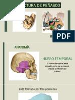 Fracturas Del Peñasco