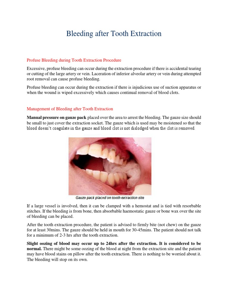 Bleeding after Tooth Extraction docx | Bleeding | Animal Anatomy