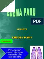edemaparu-130122103332-phpapp02