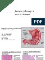 Anatomía Patológica Cancer de Estomago