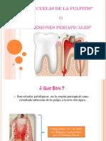 endodoncia granuloma.pptx