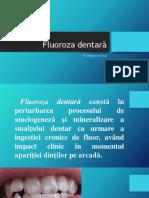 Fluoroza dentară