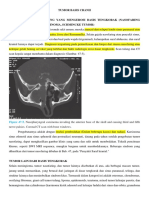 Tumor Basis Cranii
