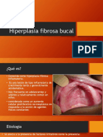 Hiperplasia fibrosa bucal