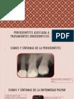 Periodontitis Asociada a Tratamientos Endodonticos