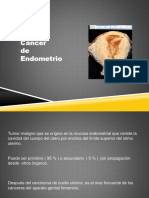 Cancer de Endometrio zt