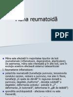 Curs Nr. 2 Poliartrita Reumatoida