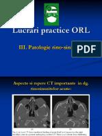 Lucrari Practice ORL III Patologie Rino Sinusala