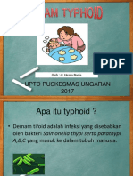 ppt tifoid