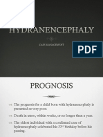 Hydranencephaly Management