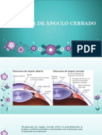 Glaucoma de ángulo cerrado o estrecho