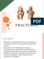 Fracturas, tipos, complicaciones y tiempos de consolidación.