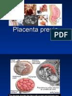 Placenta Previa Edited
