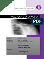 Mono Clavicula