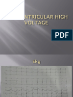 Left Ventricular High Voltage
