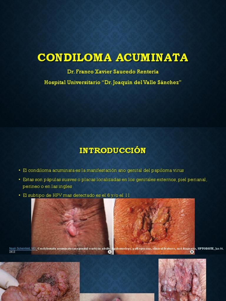 condyloma acuminata face papilloma virus sta znaci