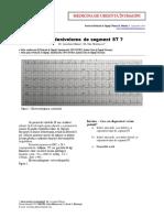 Supradenivelarea de Segment ST MedicinadeUrgentainImagini 2016 RMU