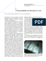 Paradental Cyst