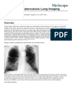 Postprimary Tuberculosis Lung Imaging- ...View, Radiography, Computed Tomography