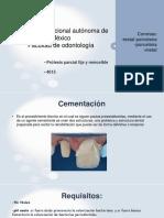 coronas (1)