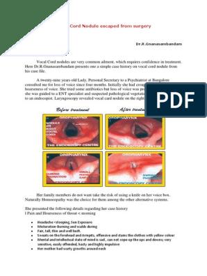 Causticum USE CASE | Extracellular Matrix | Speech Language Pathology