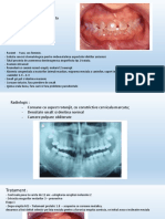 dentinogeneza imperfecta.ppt