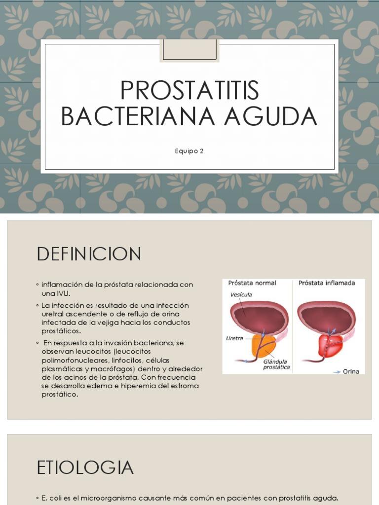 prostate cancer wiki