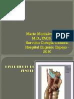 18. Esofago Diverticulo de Zenker y Cancer de Esófago Erge (2)