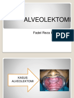 Parade Alveolektomi