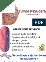 Penyuluhan Tumor Payudara