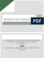 5._ Retraccion Gingival. Rcm. Tercera Parte (1)