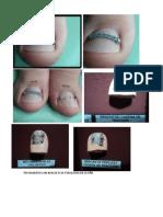 Tratamiento Con Brackets de Podologia en La Uña