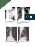 Gambaran Radiologis TB