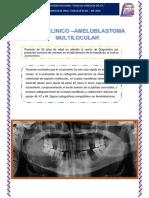 Caso Clinico Ameloblastoma