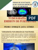 Tomografía por emisión de positrones.pptx