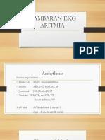 GAMBARAN-EKG-ARITMIA.pptx