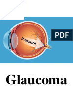 Glaucoma chapter