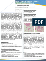 Poster Metastasis Cervico Pulmonar