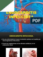 Endocarditis Infecciosa.