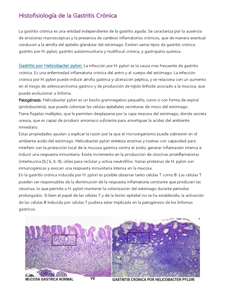 gastritis erosiva cronica con atrofia moderada