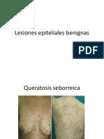Lesiones epiteliales benignas