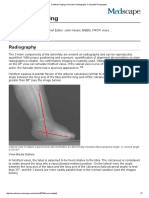 Clubfoot Imaging_ Overview, Radiography, Computed Tomography