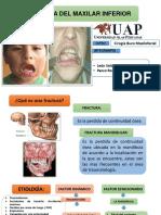 Fracturas maxilar