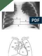 X Ray.pediatric